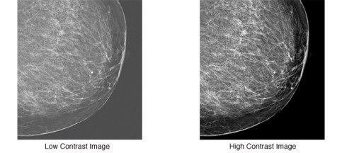 Clearly Distinguish Microcalcifications