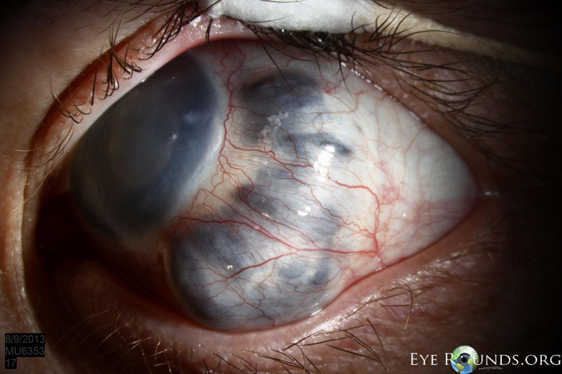 estafiloma anterior