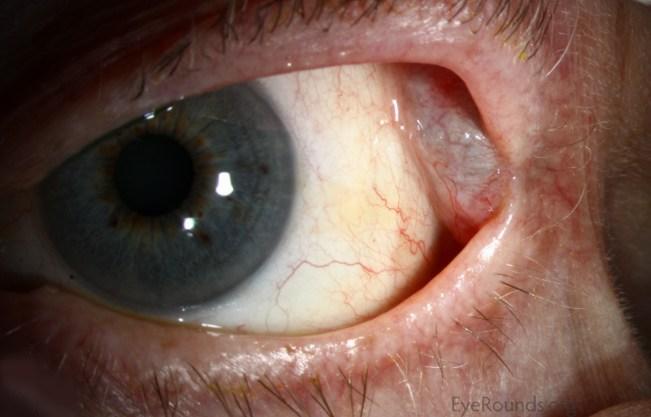 Resultado de imagen de lacrimal
