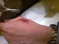 snijwond Johannes 5 hechtingen 24-4-2011
