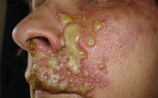Zona Hastalığı Nedir, Nedenleri, Belirtileri ve Daha Fazlası