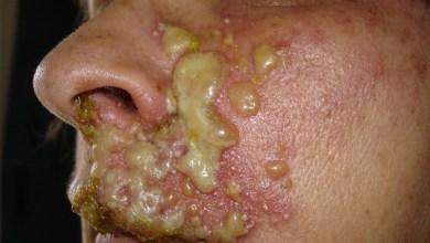 Photo of Zona Hastalığı Nedir, Nedenleri, Belirtileri ve Daha Fazlası