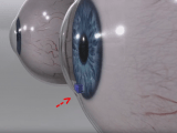 Eye Implant Device could Save Glaucoma Patients