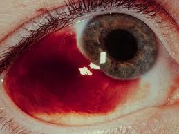 oorzaak rode ogen volzicht