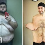 maxresdefault 23 - My 300lbs Weight Loss Left Me With 13lbs Of Loose Skin