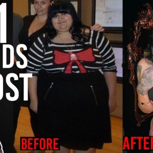 The SCARY Reality Of Weight Loss & Loose Skin Surgery