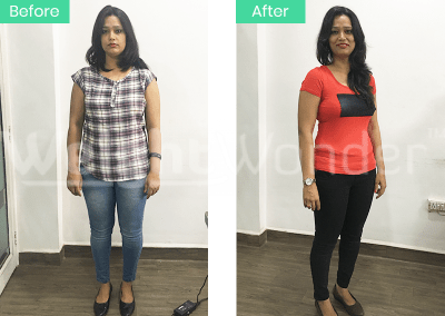 Archana Pandey (Lost 11 kgs)