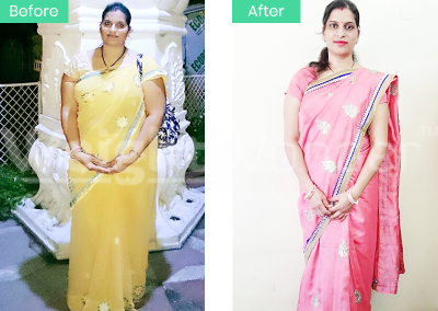 Bhagyashree Rathore (Lost 18kgs)