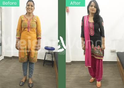 Smita Trivedi (Lost 8kgs)