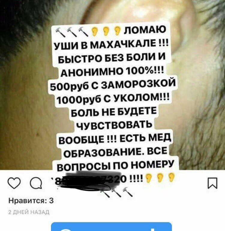 Disfigured ears are the weird trend in Dagestan