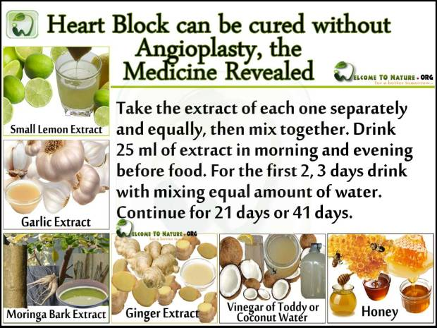Heart block cure without operation