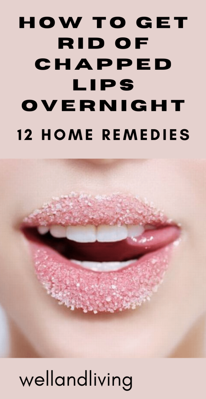 12 Home Remedies to Get Rid Of Chapped Lips Overnight