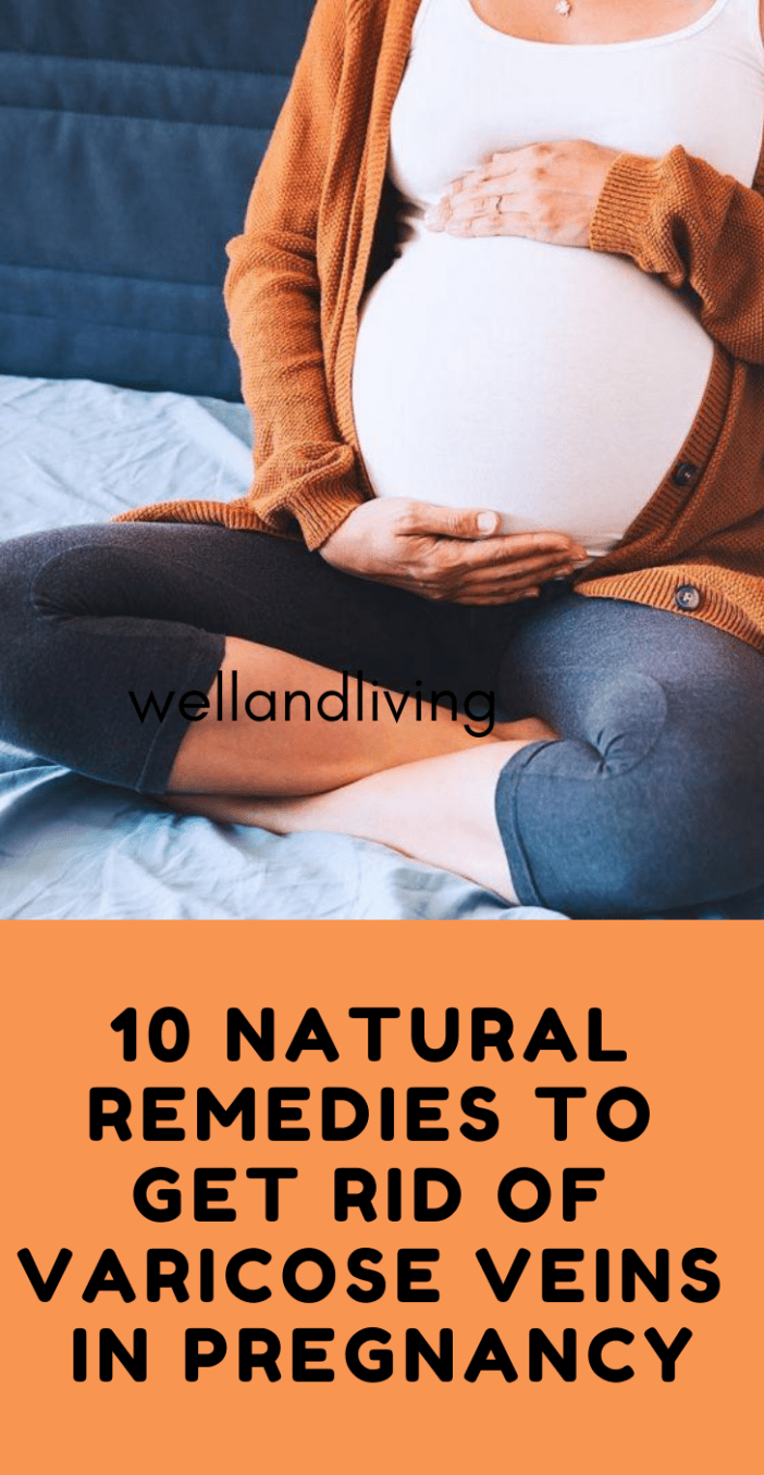 10 Superb Natural Remedies to Get Rid Of Varicose Veins in Pregnancy