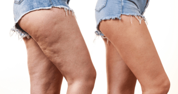 8 Easy Natural Home Remedies to Get Rid Of Cellulite on Thigh Fast