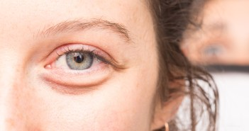 10 Superb Natural Home Remedies to Remove Under Eyes Bags