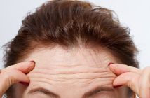 8 Easy Natural Home Remedies to Get Rid Of Forehead Wrinkles Fast