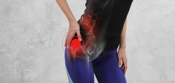 7 Best Home Remedies to Get Rid Of Hip Bursitis
