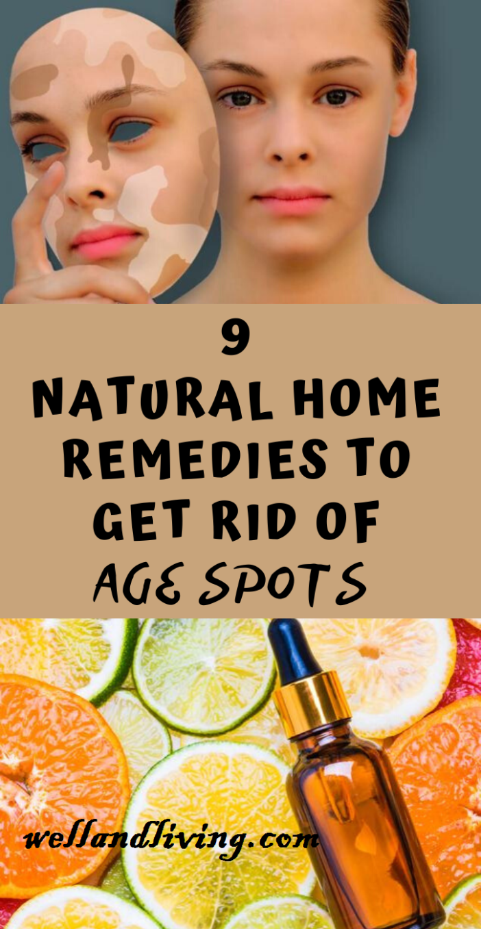 9 Best Home Remedies to Get Rid Of Age Spots Naturally