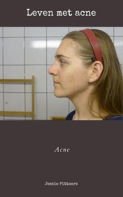 Leven met acne - Acne