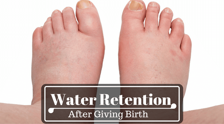 Natural Remedy For Water Retention During Pregnancy