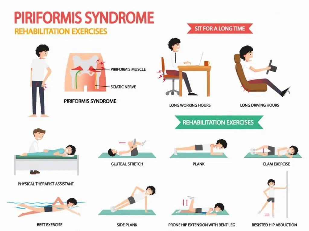 piriformis syndrome treatment wellness doctor rx el paso tx.