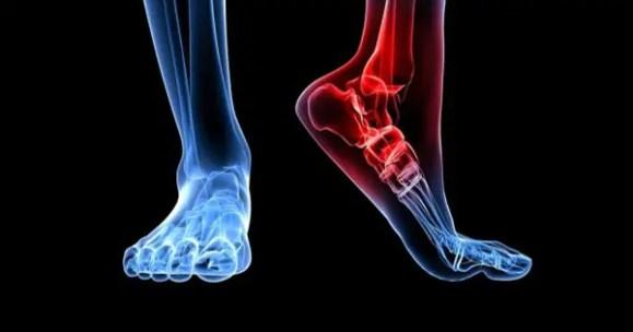 foot dysfunction chronic back pain el paso, tx.