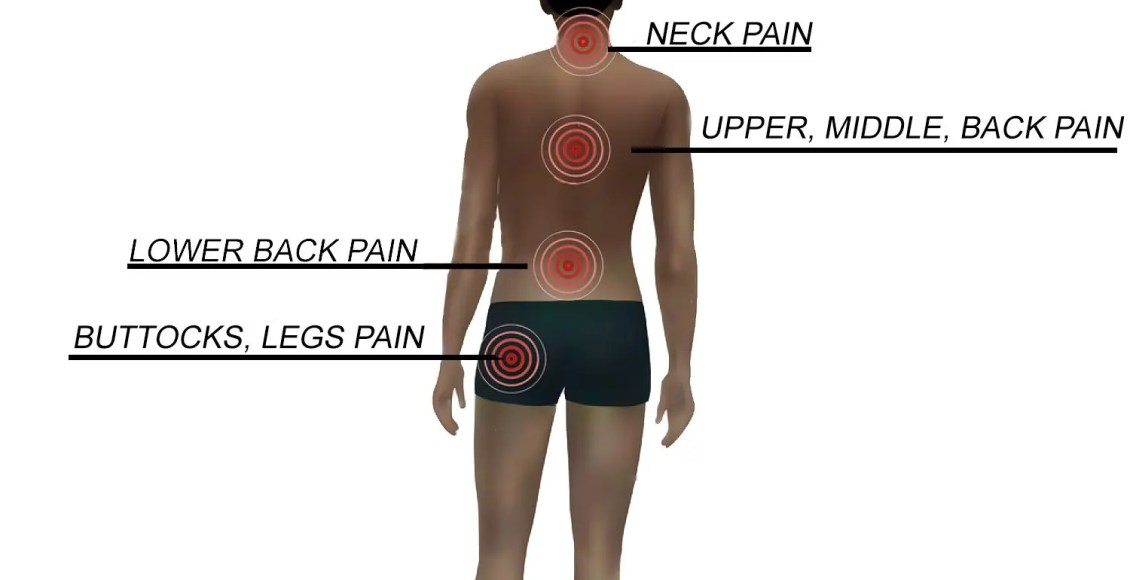 Acute Pain, Chronic Pain, and Neuropathic Pain