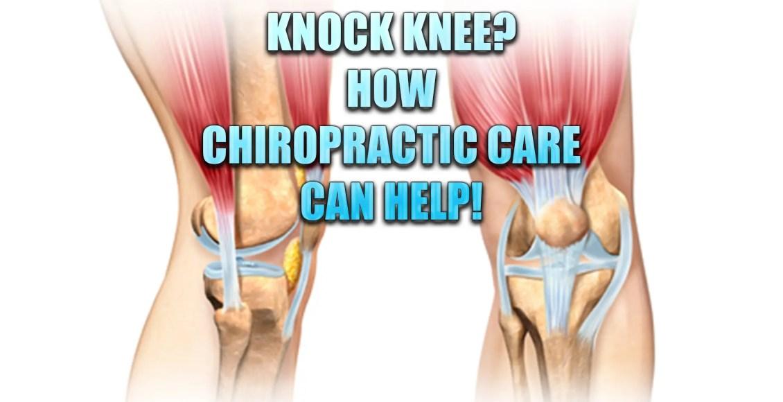 knock knee chiropractic care el paso tx.