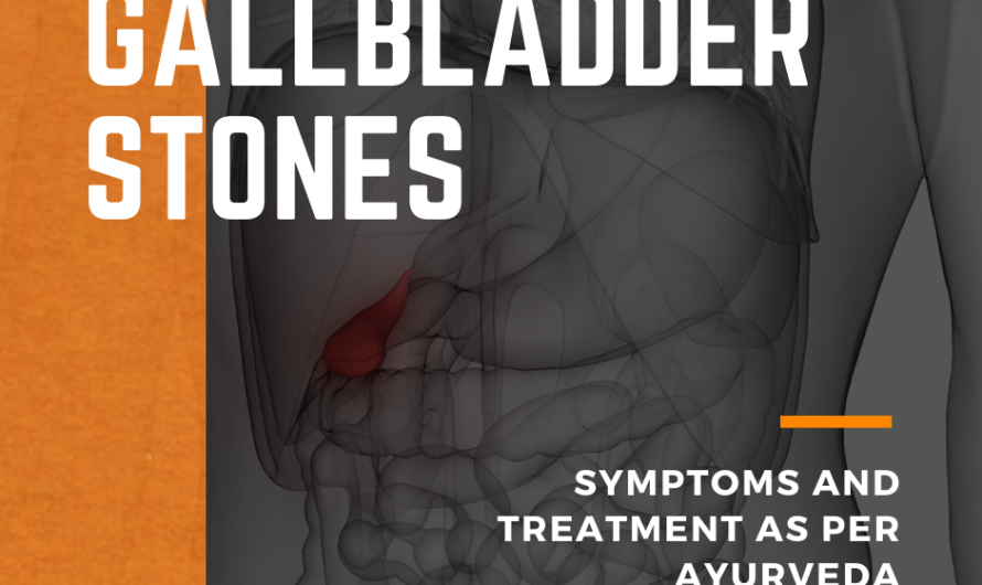 Natural Remedies Gallbladder Stones