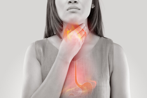 Acid Reflux, Stop The Burn Now! Natural Holistic Ways