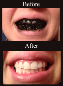 how to whiten teeth naturally with charcoal 219x300