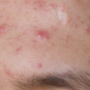 Simple Natural Ways to Get Rid Of Acne Forever