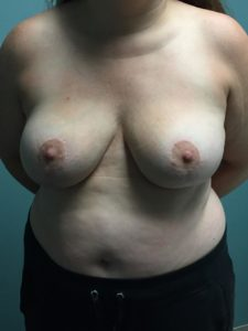 After Breast Reduction