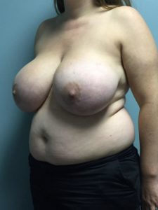 Before Breast Reduction