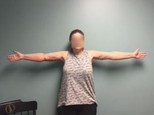 After Arm Lift