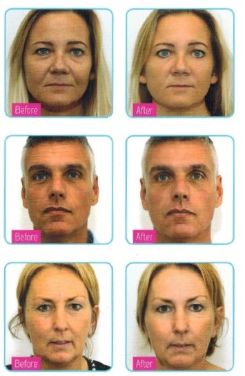 dermatude-before-and-after
