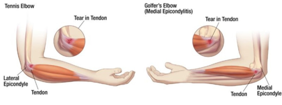 Golfer's Elbow and Tennis Elbow