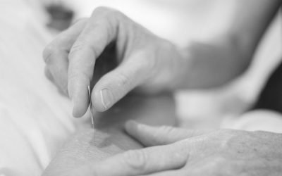 5 Common IMS/Dry Needling Questions Answered