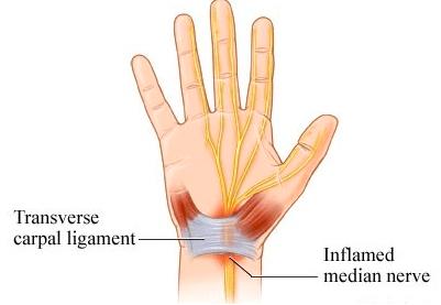 Carpal Ligament