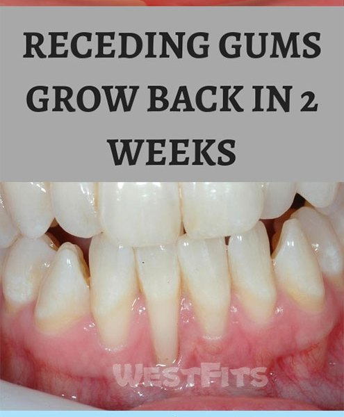 RECEDING GUMS GROW BACK IN 2 WEEKS WITH HOME REMEDIES