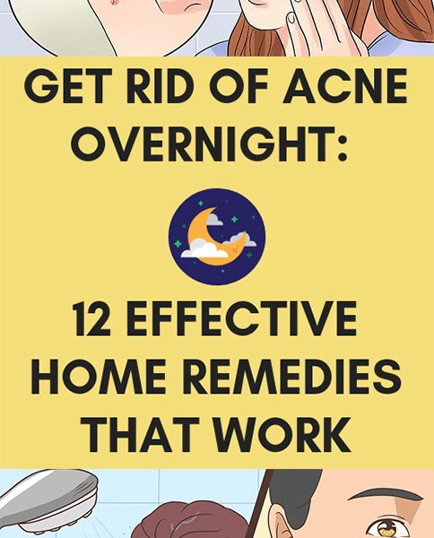 Get Rid Of Acne Overnight 12 Effective Home Remedies That Work