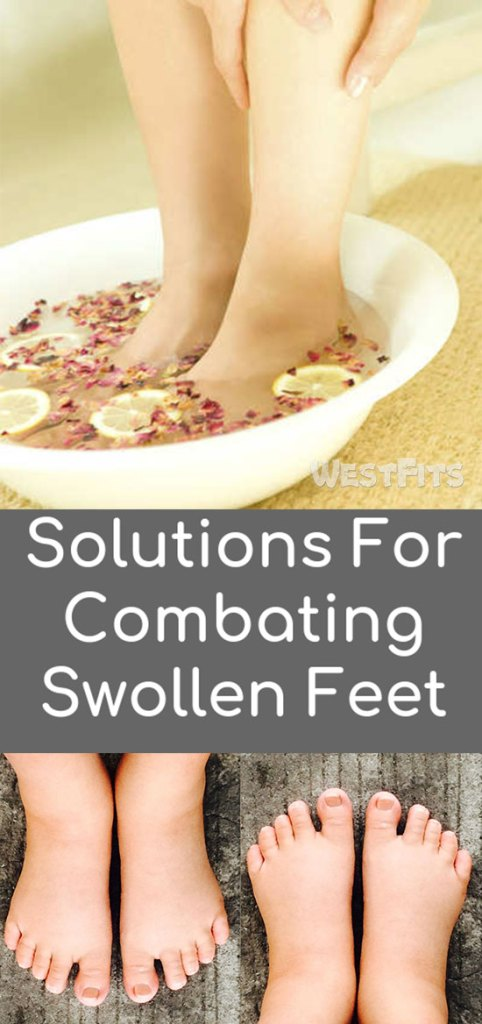 Solutions For Combating Swollen Feet With Natural Remedies