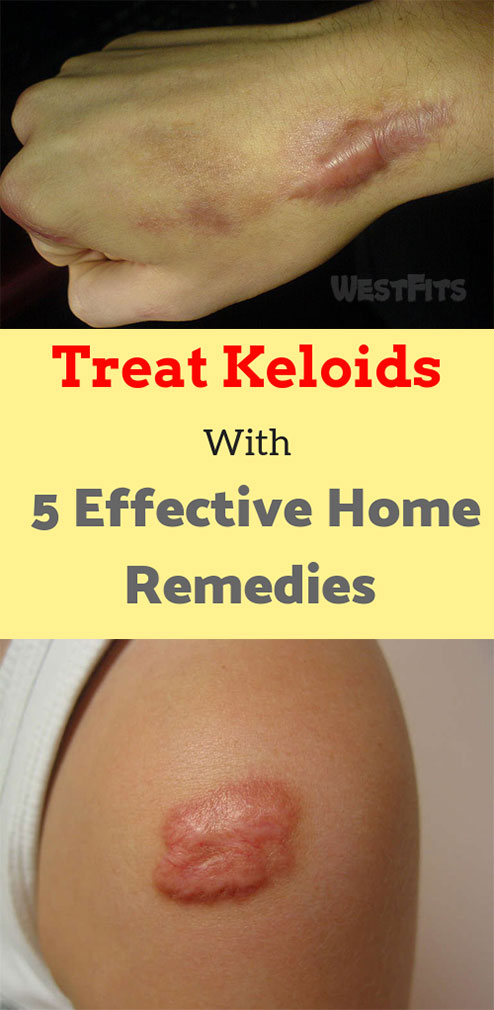 Treat Keloids With 5 Effective Home Remedies