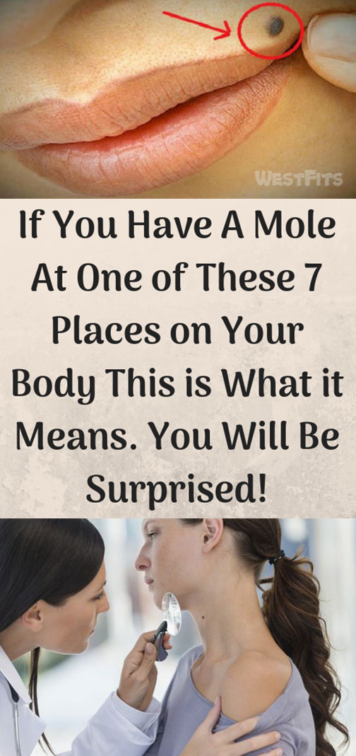 If You Have Mole At One of 7 Places on Your Body This is What it Means
