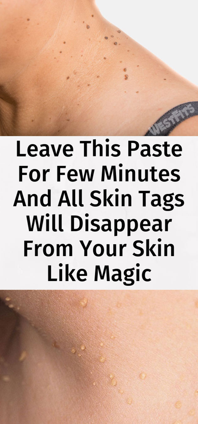 Leave This Paste For Few Minutes And All Skin Tags Will Disappear From Your Skin Like Magic