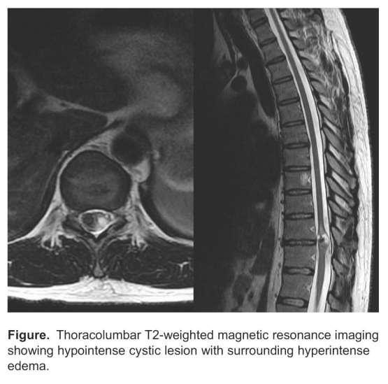 Image result for Brown-Séquard syndrome