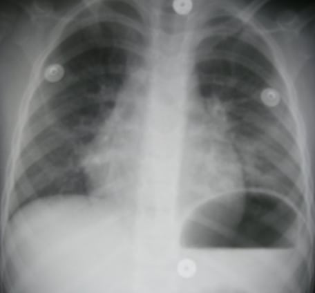 Chemical Pneumonitis From Hydrocarbon Aspiration The