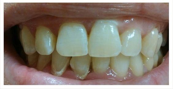 Etobicoke Dentist - West Metro Dental - Plaque and Tartar
