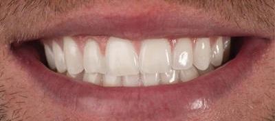 Etobicoke Dentist - West Metro Dental - Smile Enhancement