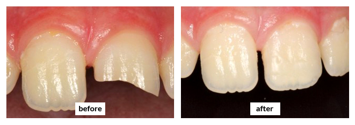 Etobicoke Dentist - West Metro Dental - Dental Resin Before and After